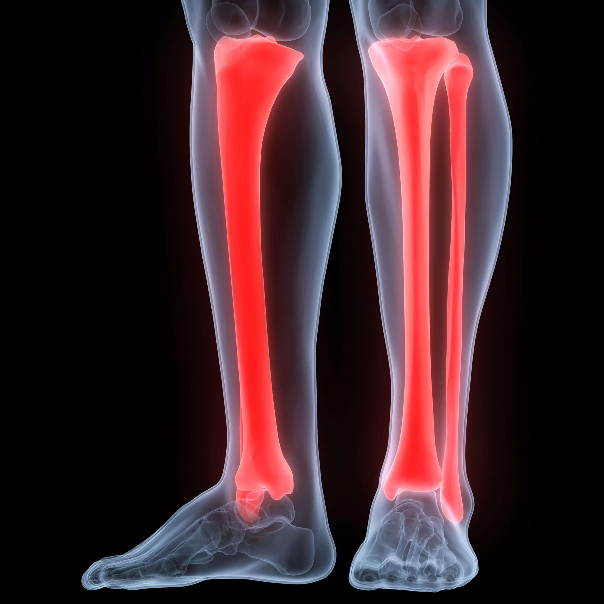 A tibia fracture after a car accident is a serious injury