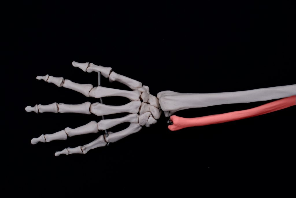 A fracture to the ulnar after a car accident is a serious injury